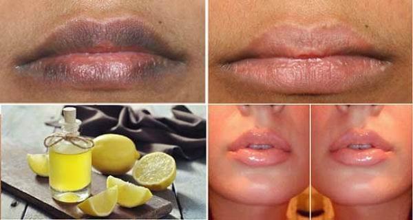 Photo of Labbra: Fantastico rimedio per  rendele più morbide e rosate in breve tempo
