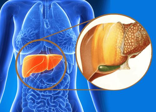 Photo of Il fegato grasso ovvero la steatosi epatica non alcolica ecco i 13 sintomi