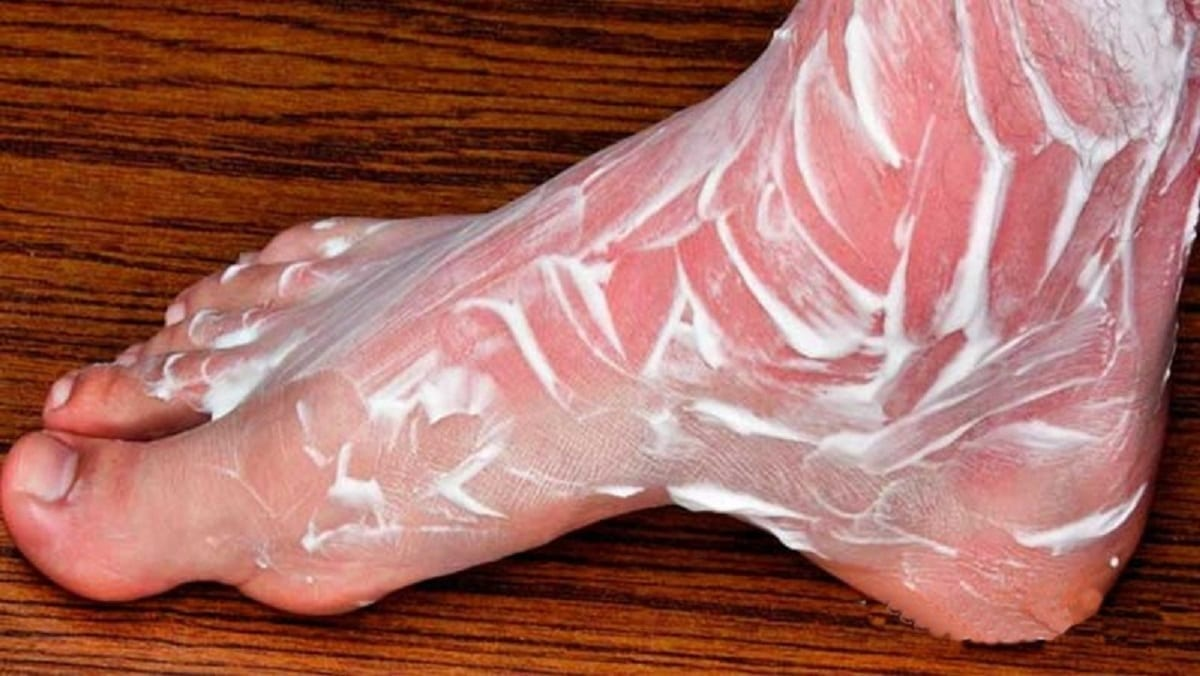 Questo eliminerà i tuoi problemi nelle ossa e nelle articolazioni per anni