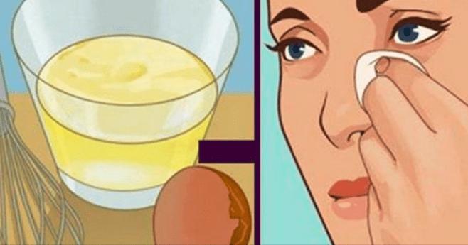 Photo of Evitare la flaccidità del viso con questi dieci rimedi casalinghi