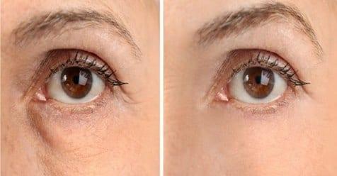 Borse sotto gli occhi: Niente più borse sotto gli occhi. Semplici rimedi per eliminarli