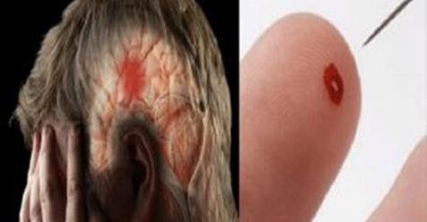 Photo of Ictus: Come salvare una persona da un ictus cerebrale utilizzando solo un ago
