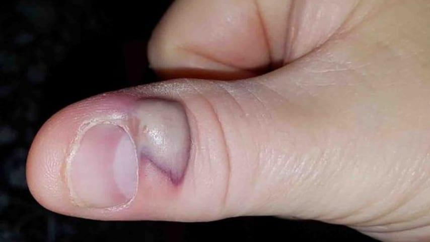 Photo of Unghie: Contrae un'infezione mortale dopo essersi mangiato le unghie