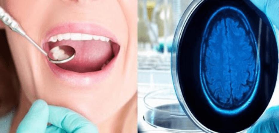 Photo of Denti: Uno studio ha trovato un farmaco che li rigenera