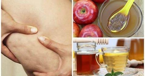Photo of Aceto di mele: Un potete anti cellulite uso e benefici