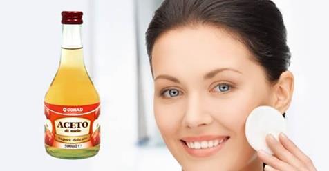 Photo of Aceto di mele: Ecco perchè usarlo sul tuo viso tutti i giorni