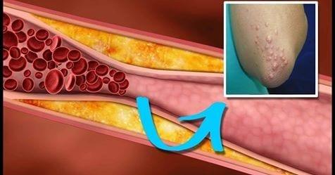 Photo of Trigliceridi alti: Come scoprire se sono alti grazie a questi sintomi
