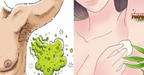 Photo of Ascelle: Come eliminare il cattivo odore con questo rimedio naturale