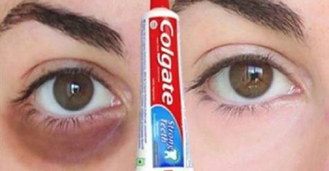 Photo of Occhiaie: Come rimuovere le occhiaie naturalmente in 3 GIORNI