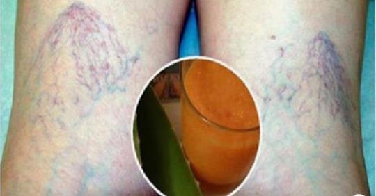 Photo of Vene varicose: come eliminarle con questo rimedio