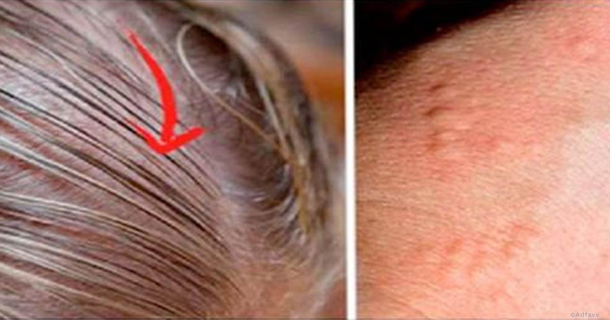 Photo of La tiroide: sintomi evidenti quando non funziona ecco quali sono