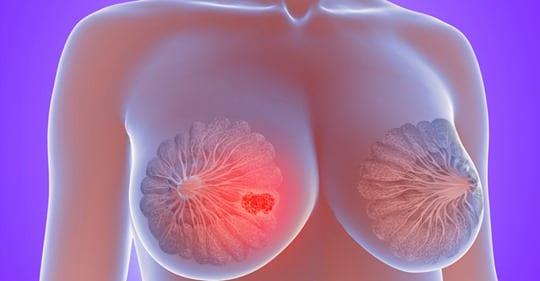 Photo of Cisti mammarie: Tutto quello che devi sapere e come prevenire