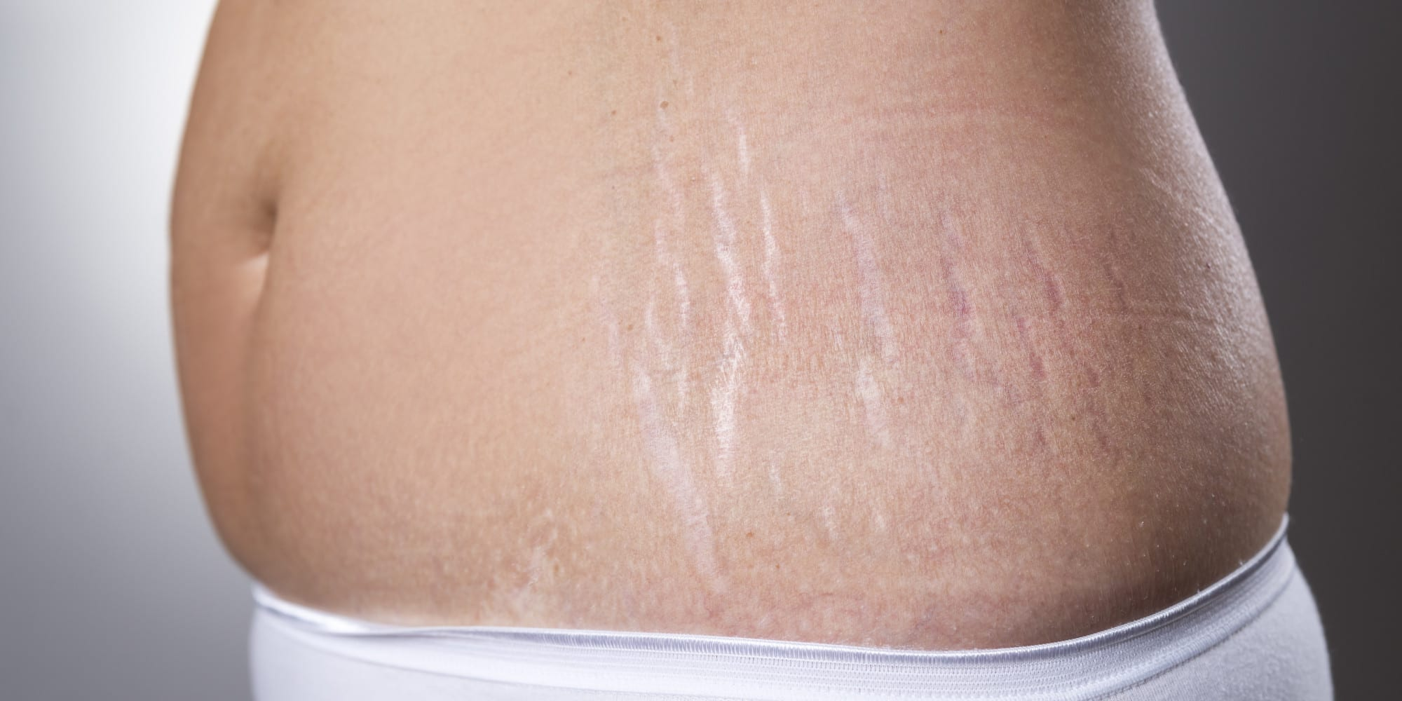 Photo of Smagliature: Questa crema libera la tua pelle dalle smagliature