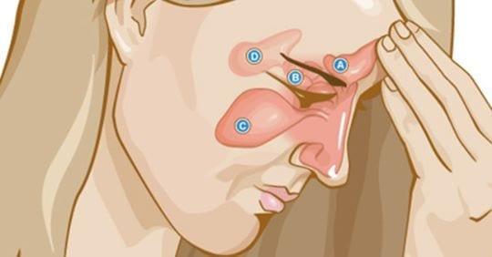 Photo of Sinusite: Come curarla in modo tempestivo e naturale