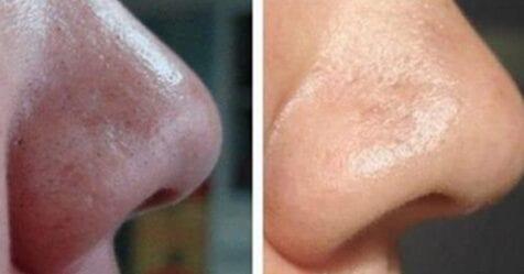 7 usi del bicarbonato di sodio: ti renderanno una persona  pulita!