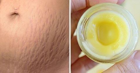 Photo of Smagliature della pelle: Prepara questa crema all'arnica e rimuovi le smagliature in 1 mese