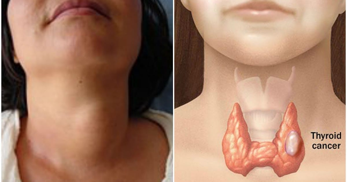 Photo of Carcinoma Tiroideo: Come scoprire i primi sintomi e come agire