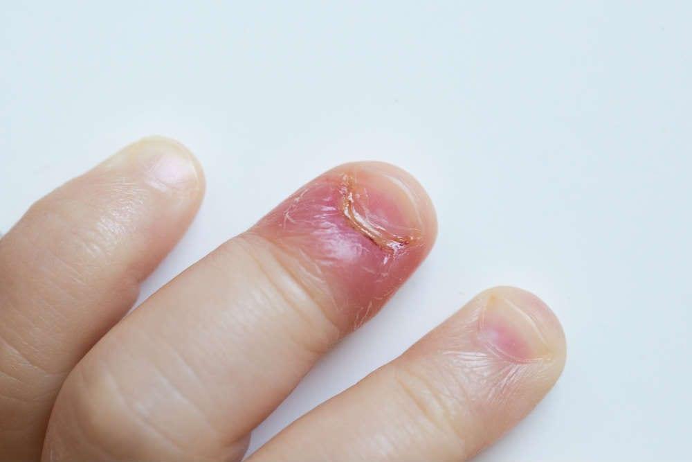 mangiarsi-unghie-pericolo