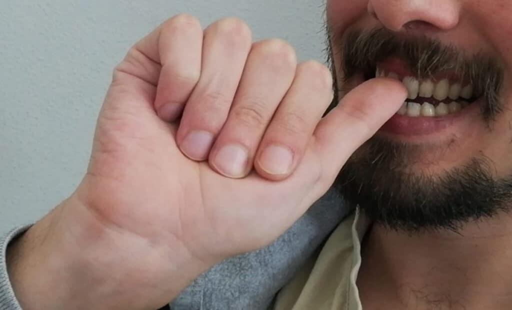 Photo of Mangiarsi le unghie: è un segno di questo tipo di personalità