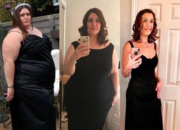 la-donna-faticava-a-perdere-peso