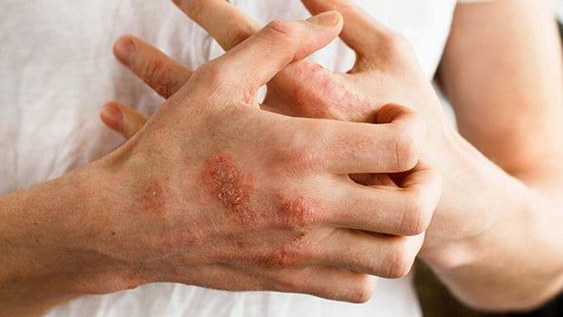 Soffre di eruzioni cutanee e scopre di essere allergico alla fidanzata